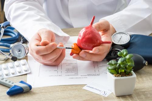 Cáncer de Próstata Metastásico Hormono Sensible