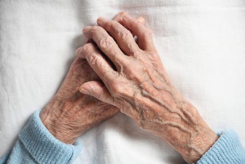 Carga de la Enfermedad en Espondiloartritis y Artritis Psoriásica en el Sistema de Salud